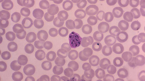 Plasmodium vivax malaria infection