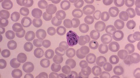 Plasmodium vivax malaria infection